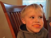 Orange teeth.